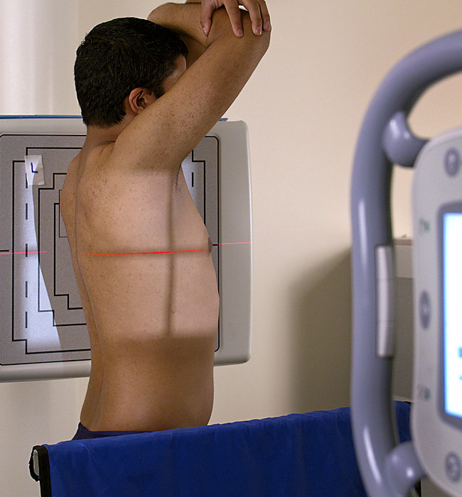One of a series depicting correct procedures for body positioning when taking x-rays.